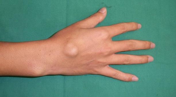 Лечение грыжи лучезапястного сустава кисти без операции