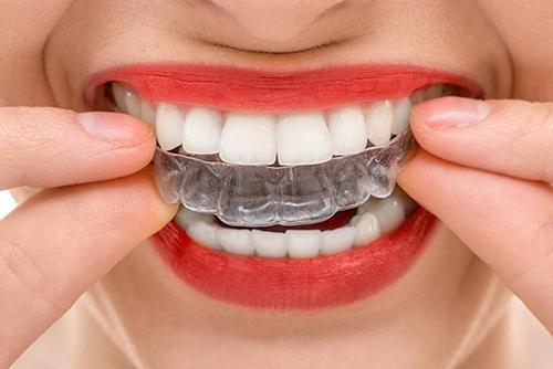 (Рус) Индивидуальные прозрачные каппы для выравнивания зубов