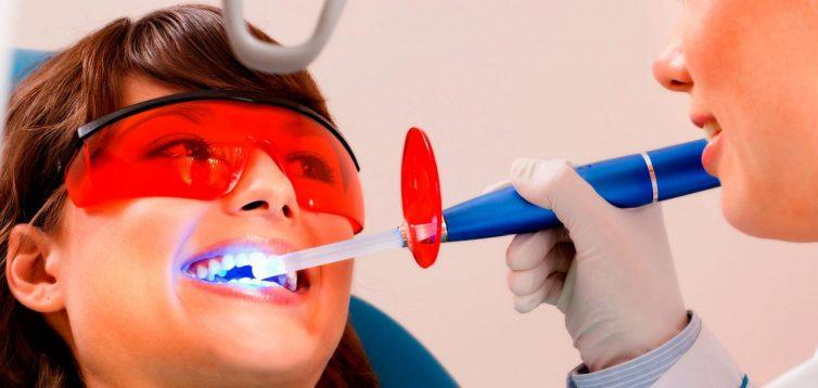 Відбілювання зубів в стоматології