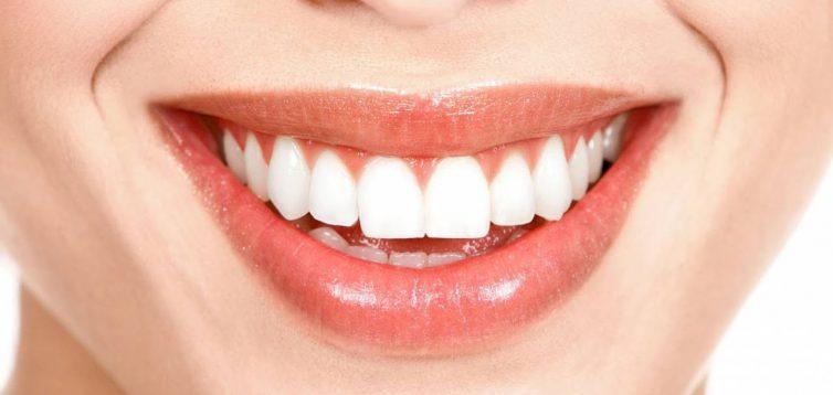 (Рус) Профессиональная чистка зубов в Киеве — преимущества метода