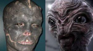 Француз видалив собі ніс і верхню губу, щоб стати схожим на інопланетянина. ФОТО