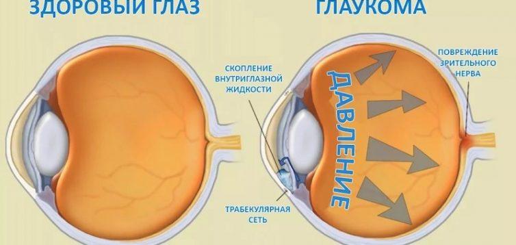 (Рус) Диагностика и лечение глаукомы в Одессе