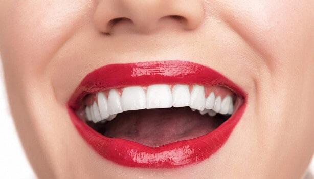 (Рус) Качественная имплантация зубов в Киеве поможет придать улыбке красоту