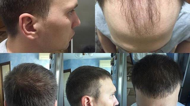 (Рус) Пересадка волос в Киеве